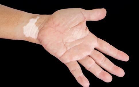 手腕上有白癜风要怎么治才会比较好