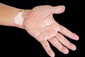 白斑病发作有哪些症状,怎么治?